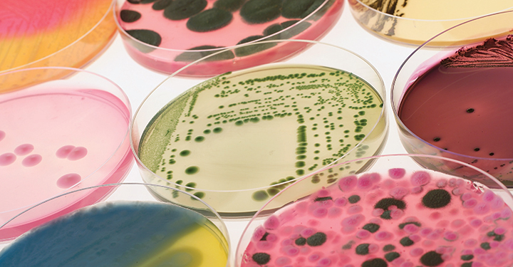various samples in petri dishes