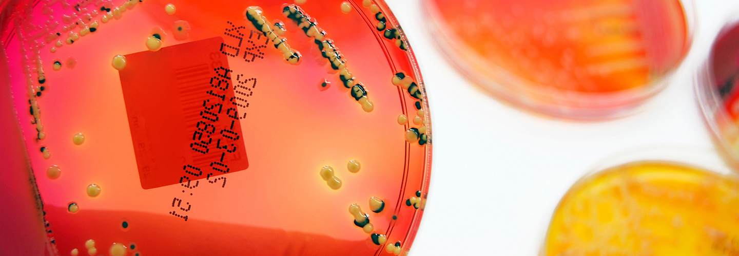 Red Sample in Petri dish with numerical code