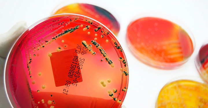 petri dish with numerical code